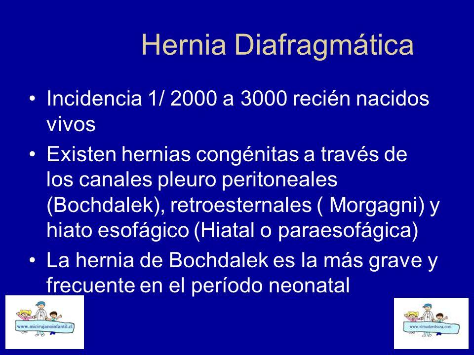Hernia Diafragmática Incidencia 1/ 2000 a 3000 recién nacidos vivos Existen hernias congénitas a través de los canales pleuro peritoneales (Bochdalek)