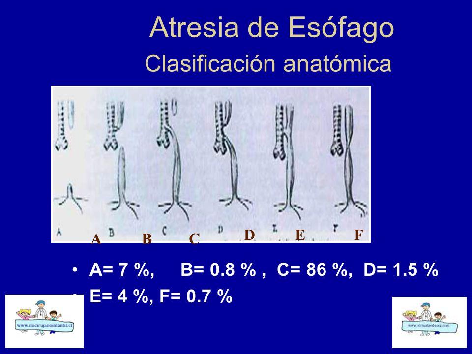 Atresia de Esófago Clasificación anatómica A= 7 %, B= 0.8 %, C= 86 %, D= 1.5 % E= 4 %, F= 0.7 % ABC DEF