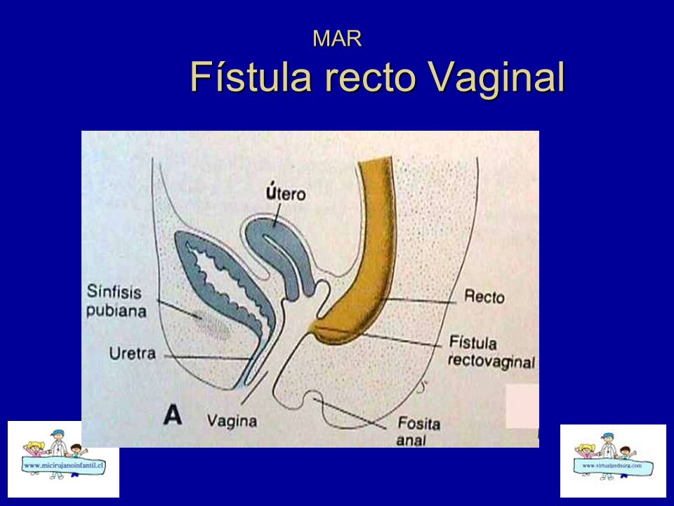 MAR Fístula recto Urinaria