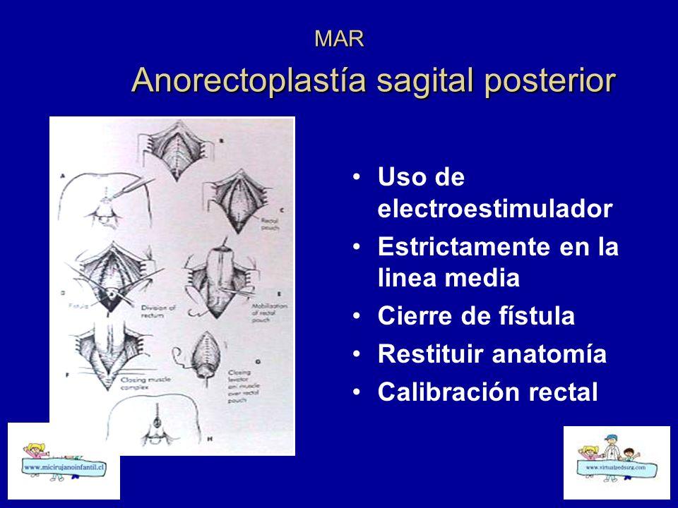MAR Anorectoplastía sagital posterior Uso de electroestimulador Estrictamente en la linea media Cierre de fístula Restituir anatomía Calibración recta