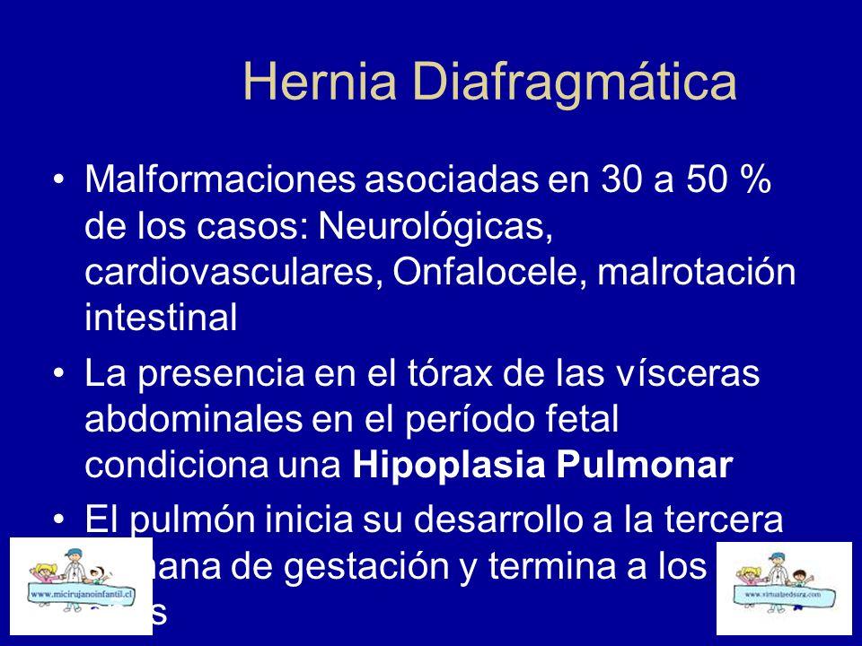 Hernia Diafragmática Malformaciones asociadas en 30 a 50 % de los casos: Neurológicas, cardiovasculares, Onfalocele, malrotación intestinal La presenc
