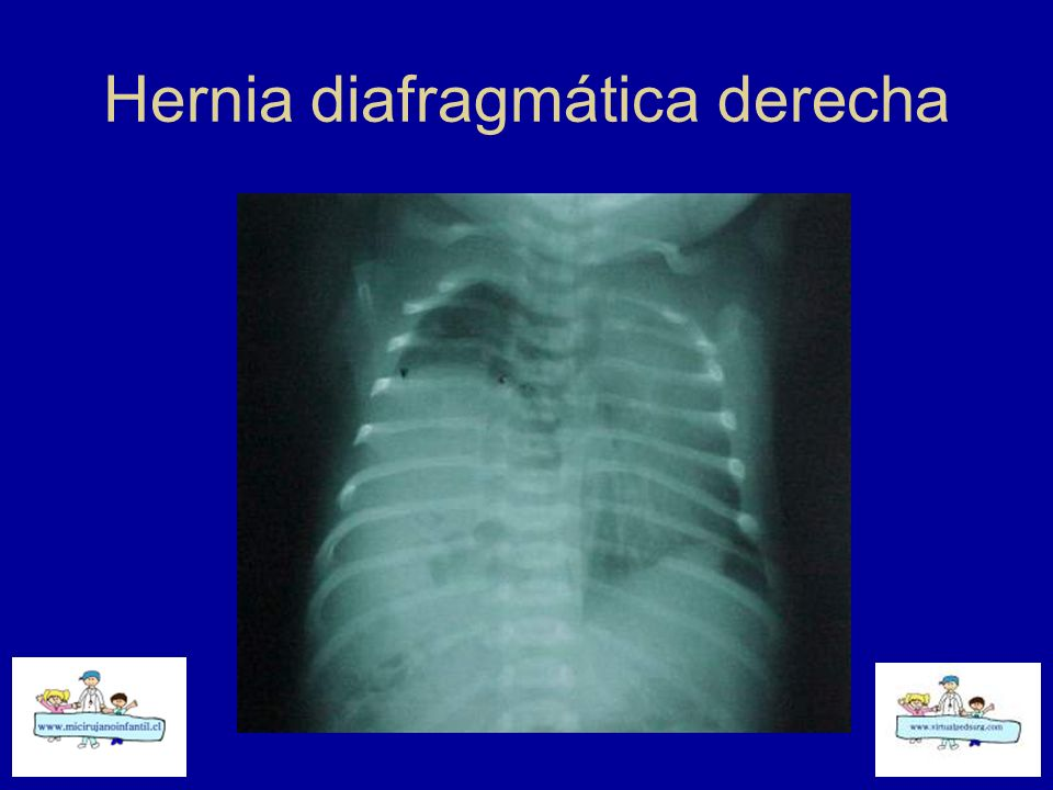 Hernia diafragmática derecha