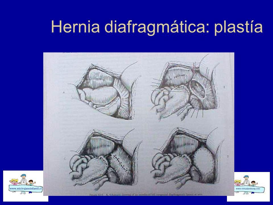 Hernia diafragmática: plastía