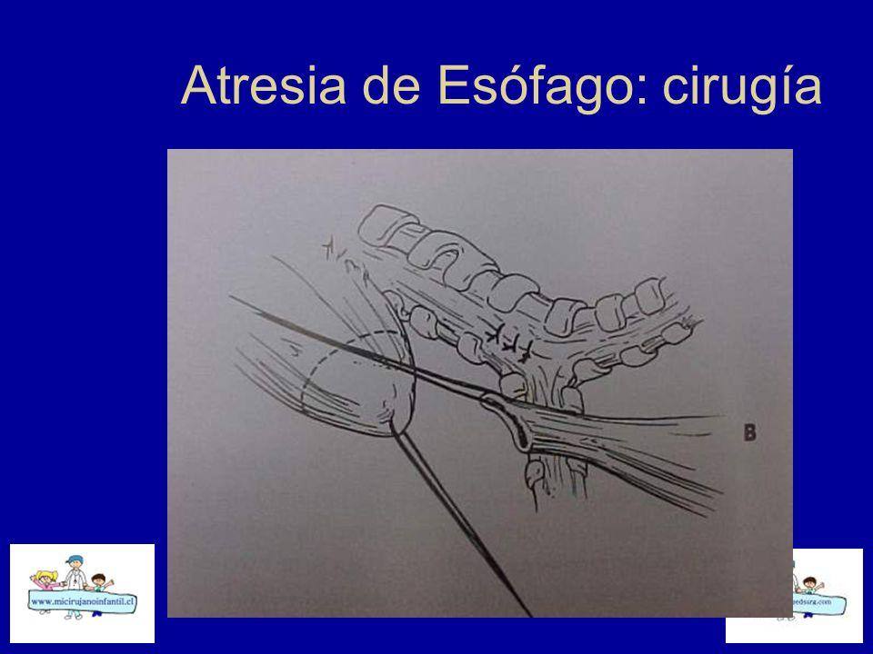 Atresia de Esófago: cirugía