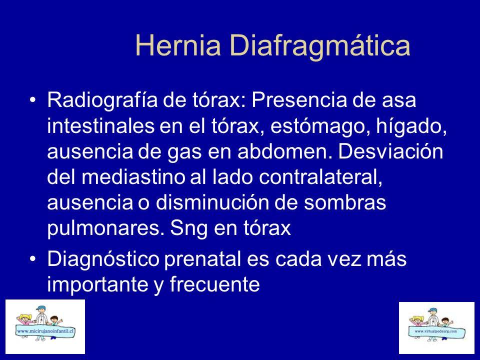 Hernia Diafragmática Radiografía de tórax: Presencia de asa intestinales en el tórax, estómago, hígado, ausencia de gas en abdomen. Desviación del med