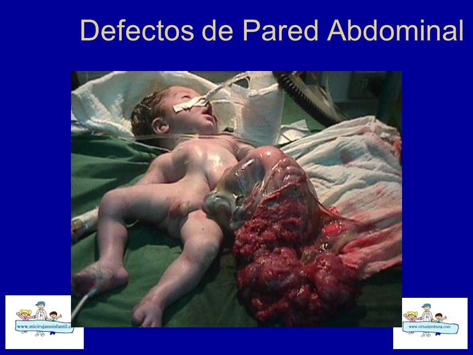Defectos de Pared Abdominal