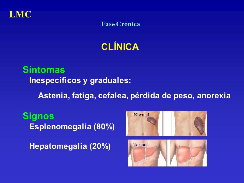 Fase Crónica CLÍNICA Síntomas Inespecíficos y graduales: Astenia, fatiga, cefalea, pérdida de peso, anorexia Signos Esplenomegalia (80%) Hepatomegalia