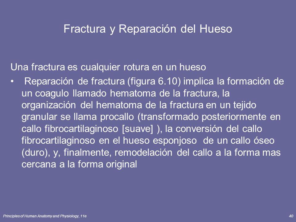 Principles of Human Anatomy and Physiology, 11e40 Fractura y Reparación del Hueso Una fractura es cualquier rotura en un hueso Reparación de fractura