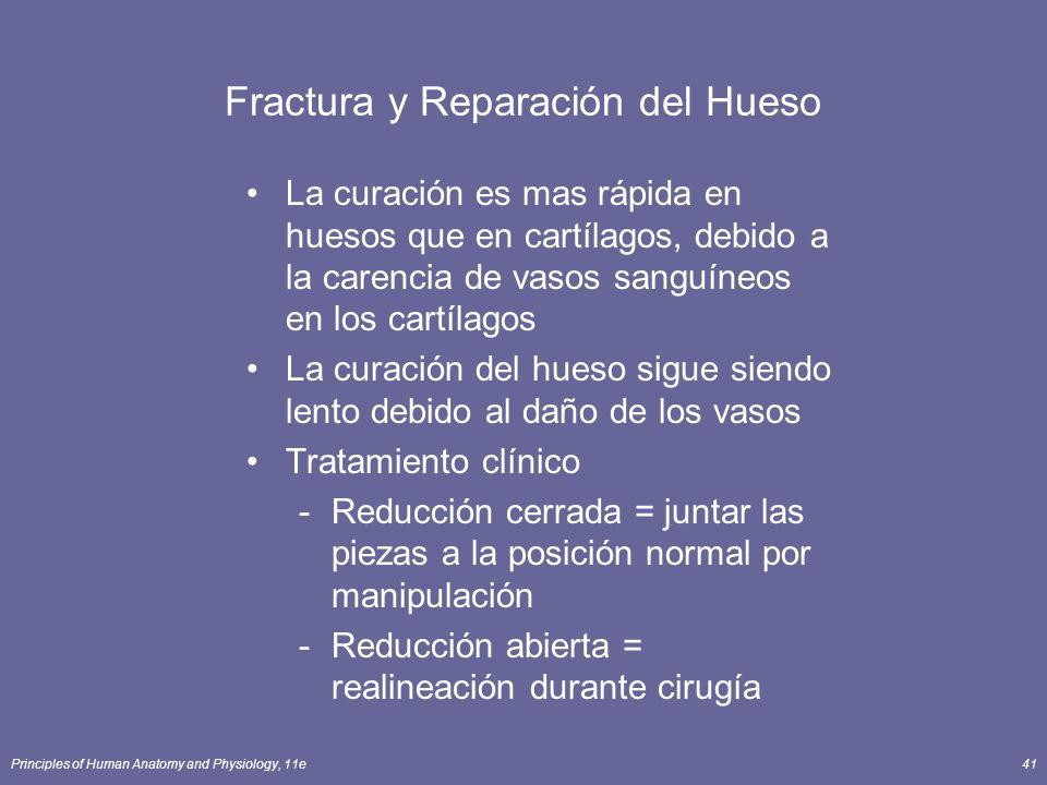 Principles of Human Anatomy and Physiology, 11e41 Fractura y Reparación del Hueso La curación es mas rápida en huesos que en cartílagos, debido a la c