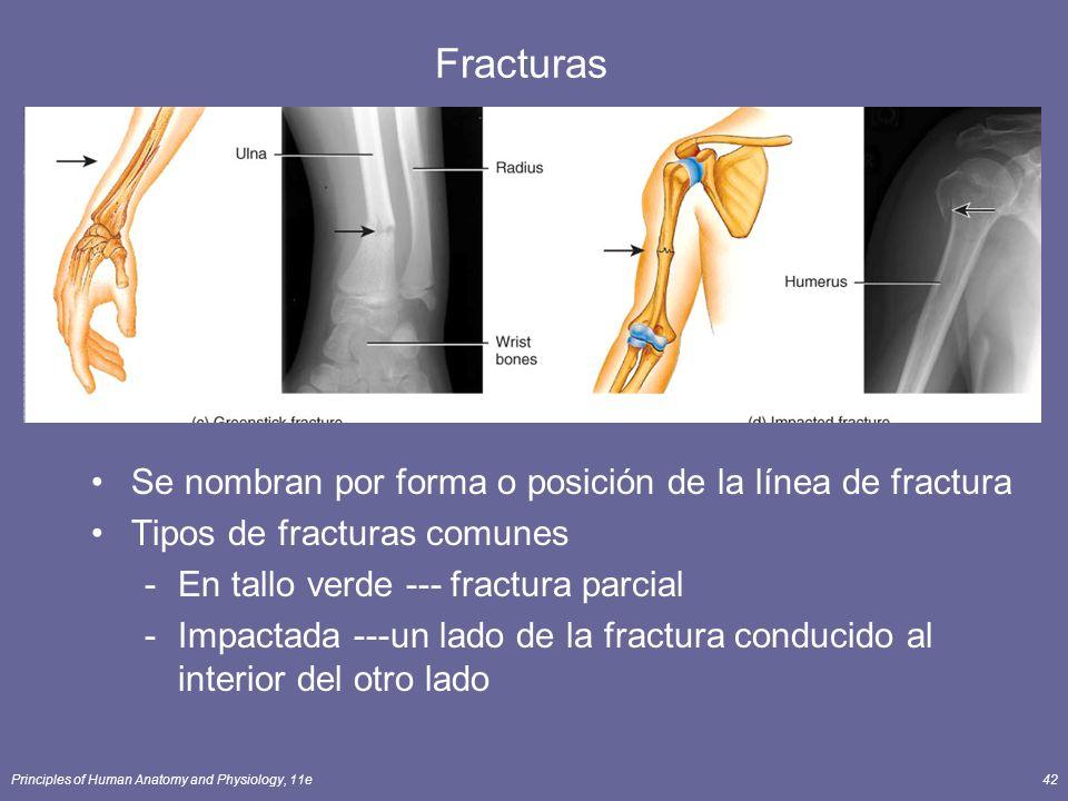 Principles of Human Anatomy and Physiology, 11e42 Fracturas Se nombran por forma o posición de la línea de fractura Tipos de fracturas comunes -En tal