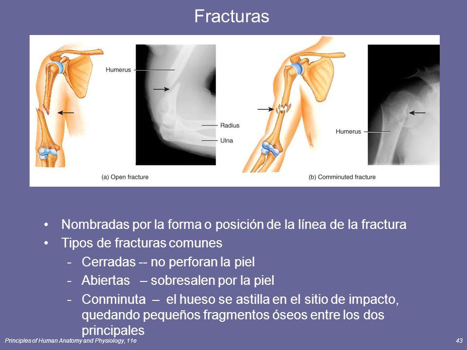 Principles of Human Anatomy and Physiology, 11e43 Fracturas Nombradas por la forma o posición de la línea de la fractura Tipos de fracturas comunes -C