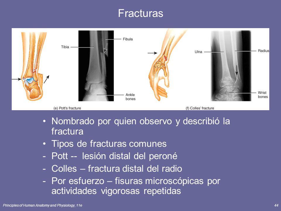 Principles of Human Anatomy and Physiology, 11e44 Fracturas Nombrado por quien observo y describió la fractura Tipos de fracturas comunes -Pott -- les