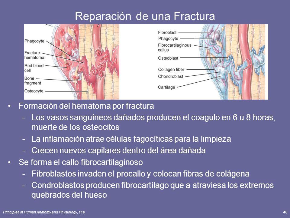 Principles of Human Anatomy and Physiology, 11e46 Reparación de una Fractura Formación del hematoma por fractura -Los vasos sanguíneos dañados produce