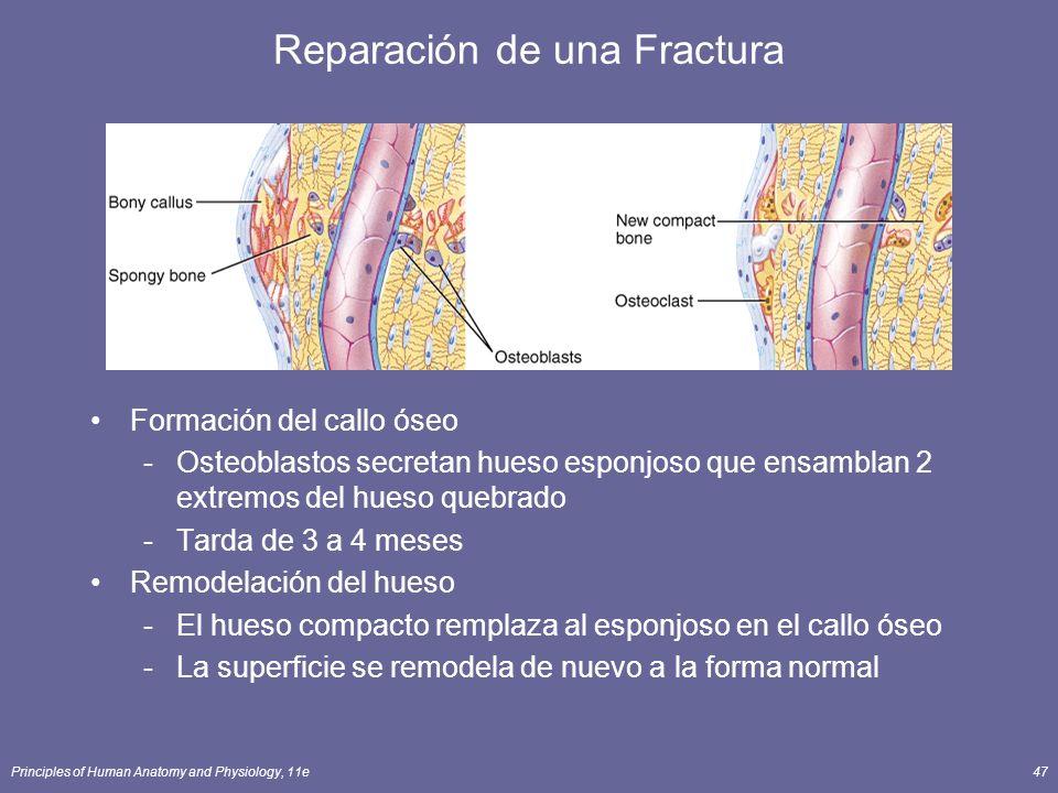 Principles of Human Anatomy and Physiology, 11e47 Reparación de una Fractura Formación del callo óseo -Osteoblastos secretan hueso esponjoso que ensam