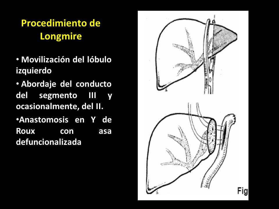 Procedimiento de Longmire Movilización del lóbulo izquierdo Abordaje del conducto del segmento III y ocasionalmente, del II. Anastomosis en Y de Roux
