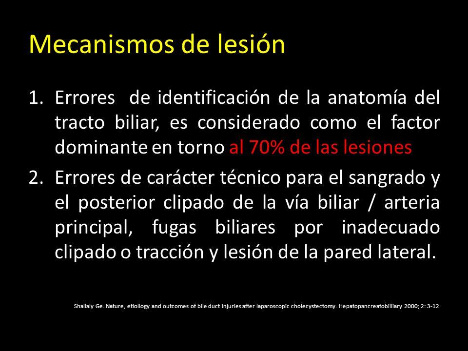Mecanismos de lesión 1.Errores de identificación de la anatomía del tracto biliar, es considerado como el factor dominante en torno al 70% de las lesi