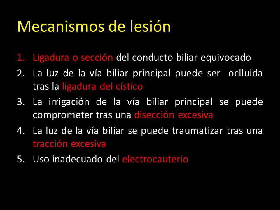 Mecanismos de lesión 1.Ligadura o sección del conducto biliar equivocado 2.La luz de la vía biliar principal puede ser oclluida tras la ligadura del cístico 3.La irrigación de la vía biliar principal se puede comprometer tras una disección excesiva 4.La luz de la vía biliar se puede traumatizar tras una tracción excesiva 5.Uso inadecuado del electrocauterio