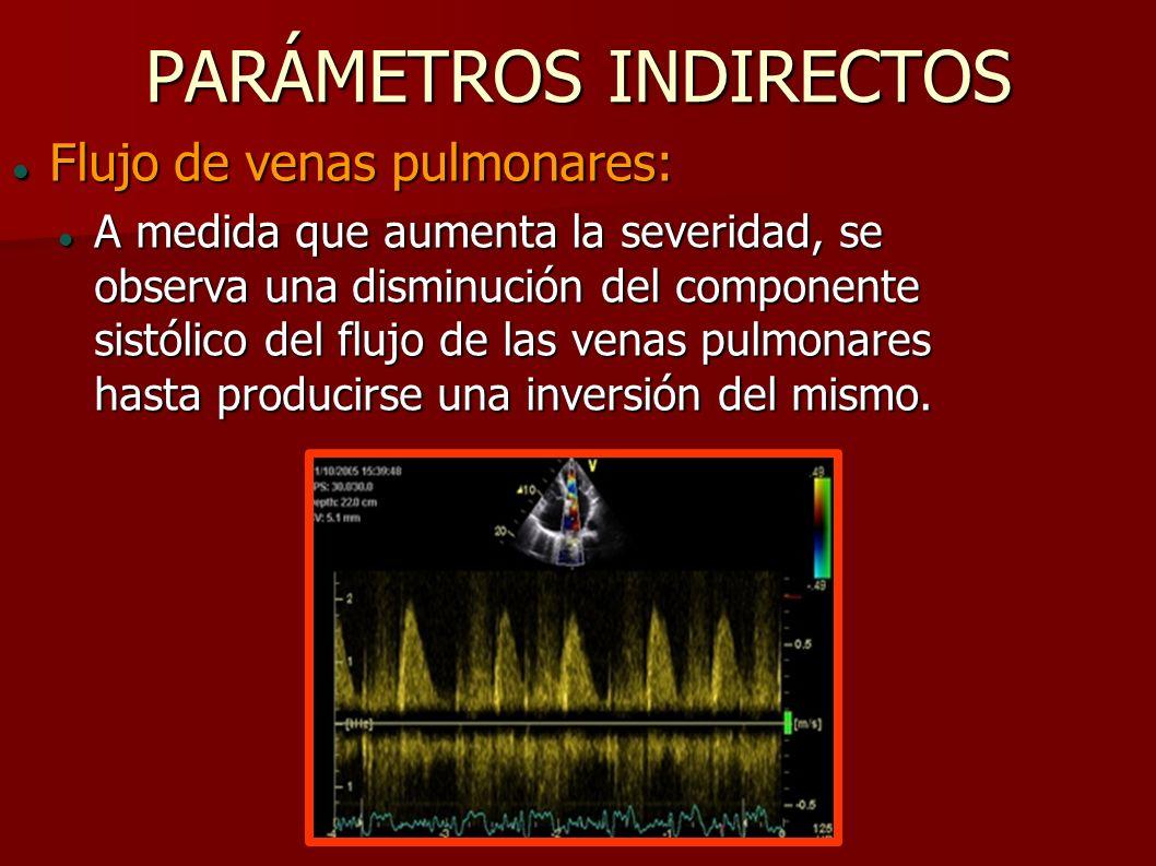PARÁMETROS INDIRECTOS Flujo de venas pulmonares: Flujo de venas pulmonares: A medida que aumenta la severidad, se observa una disminución del componen