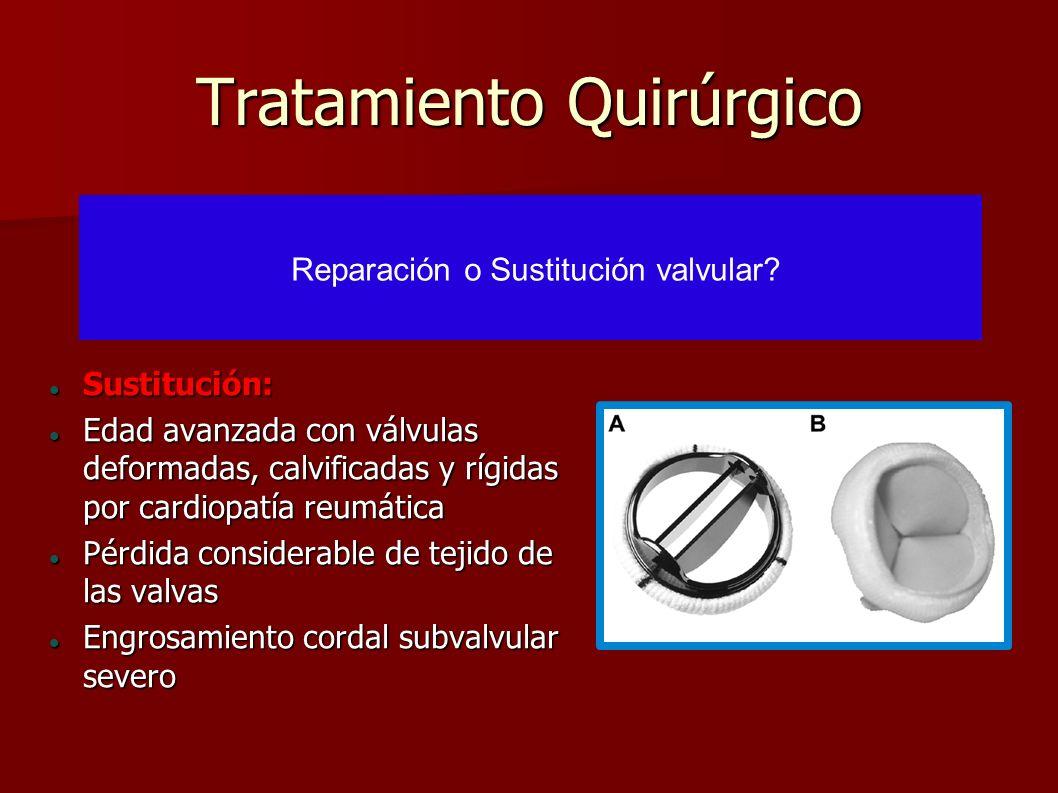Tratamiento Quirúrgico Sustitución: Sustitución: Edad avanzada con válvulas deformadas, calvificadas y rígidas por cardiopatía reumática Edad avanzada