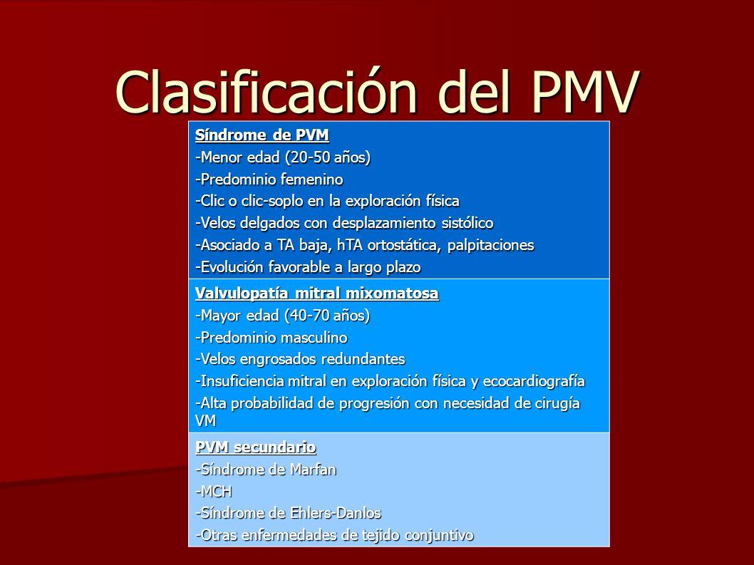 Clasificación del PMV Síndrome de PVM -Menor edad (20-50 años) -Predominio femenino -Clic o clic-soplo en la exploración física -Velos delgados con de