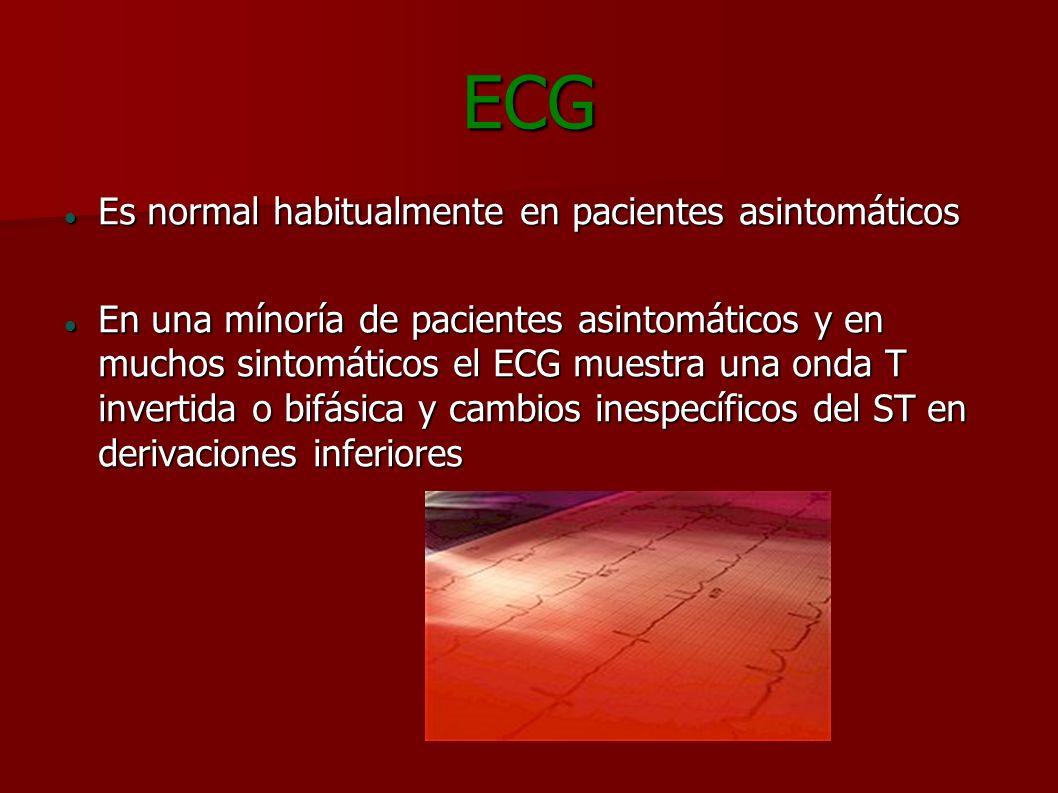 ECG Es normal habitualmente en pacientes asintomáticos Es normal habitualmente en pacientes asintomáticos En una mínoría de pacientes asintomáticos y