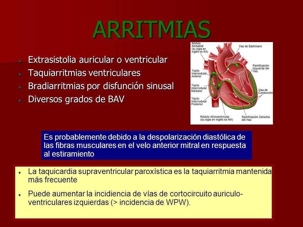 ARRITMIAS Extrasistolia auricular o ventricular Extrasistolia auricular o ventricular Taquiarritmias ventriculares Taquiarritmias ventriculares Bradia