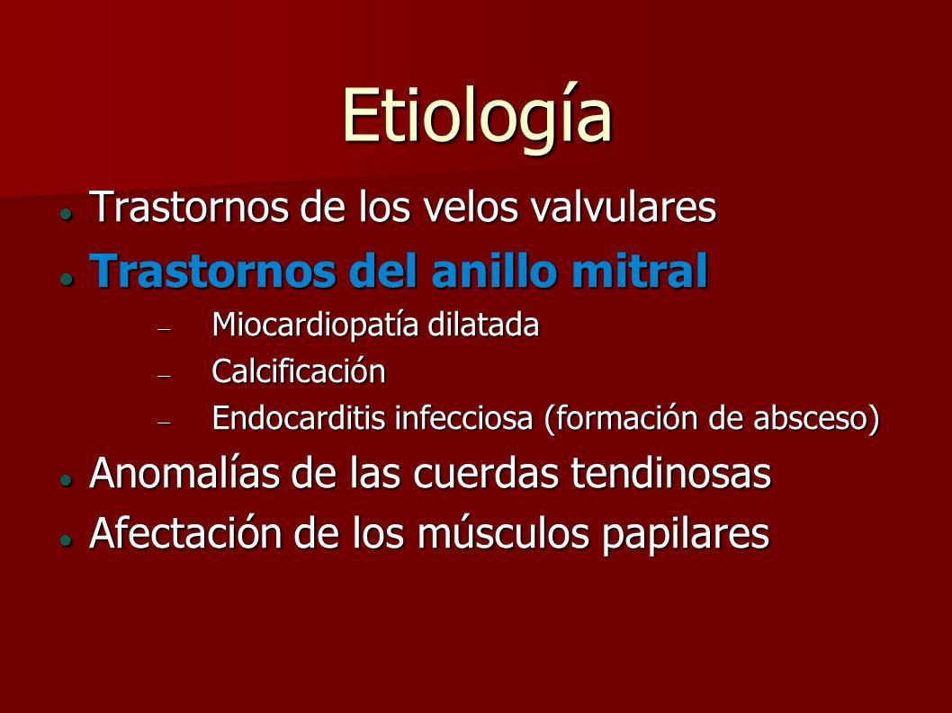 Etiología Trastornos de los velos valvulares Trastornos de los velos valvulares Trastornos del anillo mitral Trastornos del anillo mitral Miocardiopat