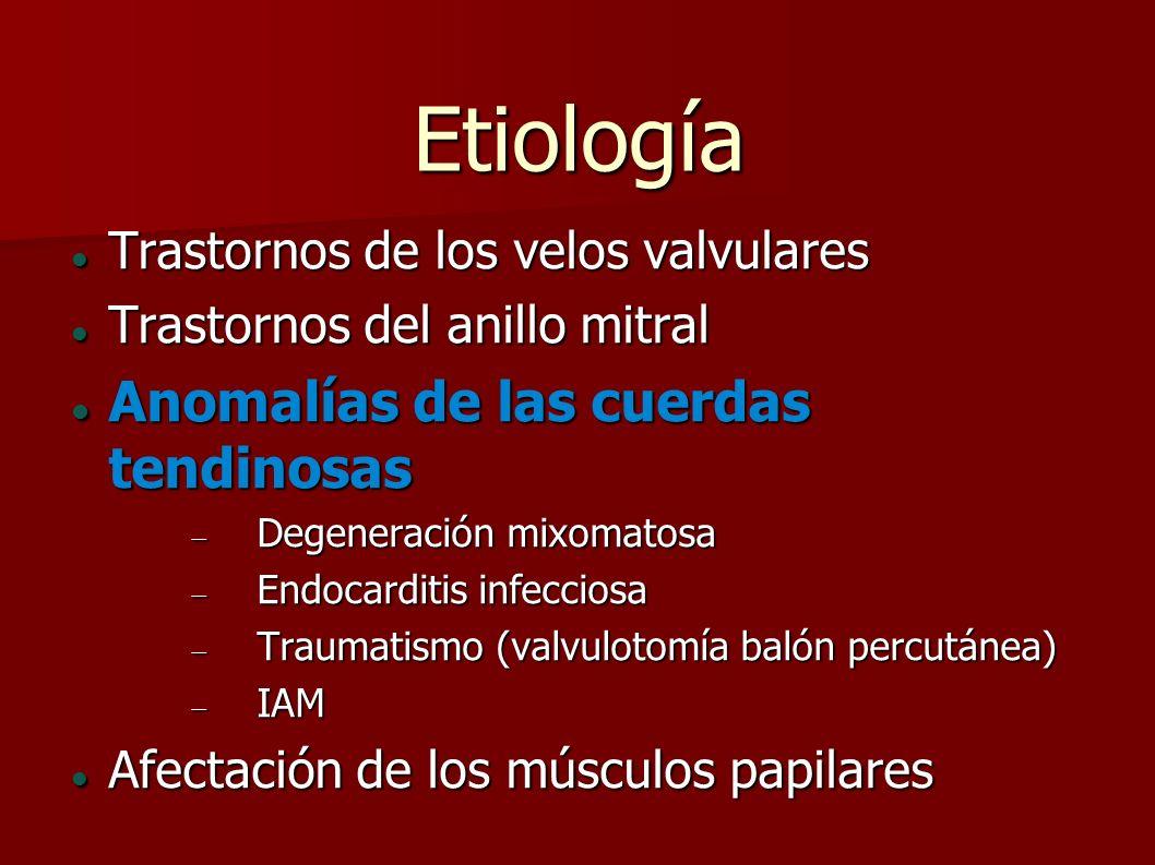 Etiología Trastornos de los velos valvulares Trastornos de los velos valvulares Trastornos del anillo mitral Trastornos del anillo mitral Anomalías de