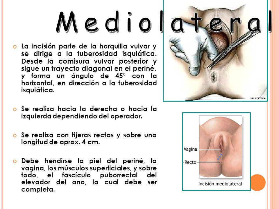 La incisión parte de la horquilla vulvar y se dirige a la tuberosidad isquiática. Desde la comisura vulvar posterior y sigue un trayecto diagonal en e