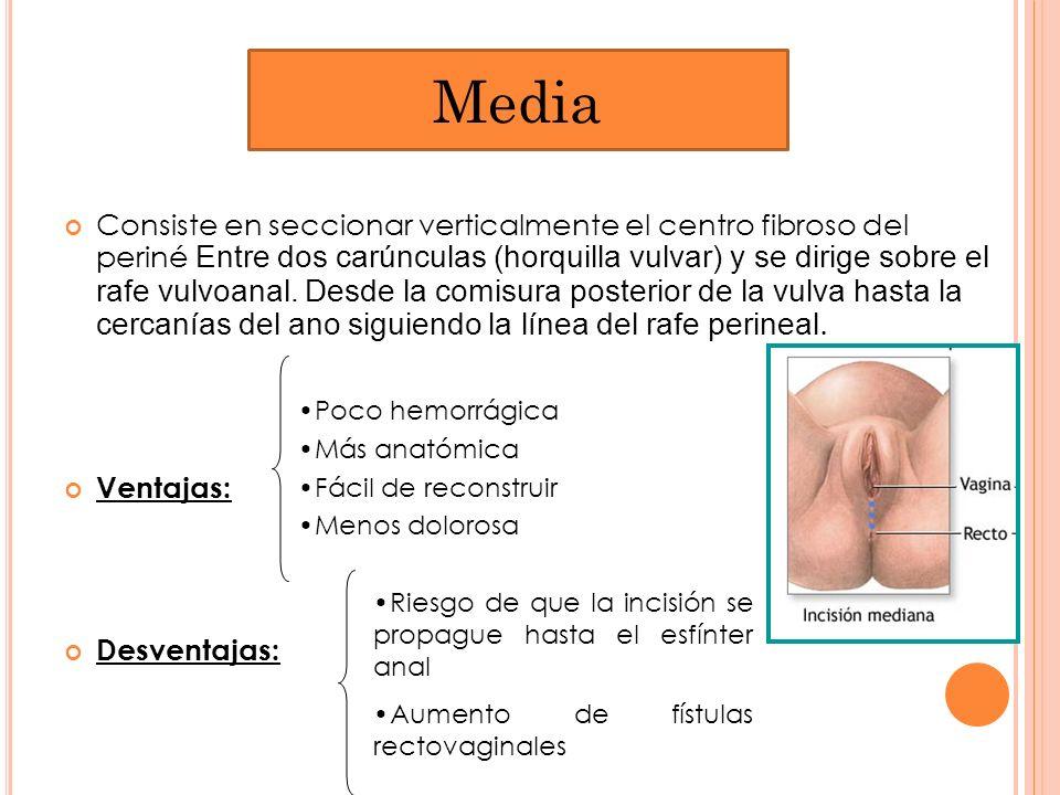 Consiste en seccionar verticalmente el centro fibroso del periné Entre dos carúnculas (horquilla vulvar) y se dirige sobre el rafe vulvoanal. Desde la