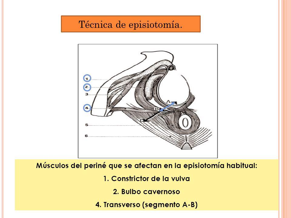 Músculos del periné que se afectan en la episiotomía habitual: 1. Constrictor de la vulva 2. Bulbo cavernoso 4. Transverso (segmento A-B) Técnica de e