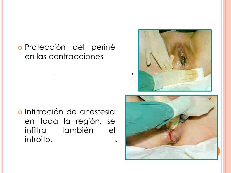 Protección del periné en las contracciones Infiltración de anestesia en toda la región, se infiltra también el introito.
