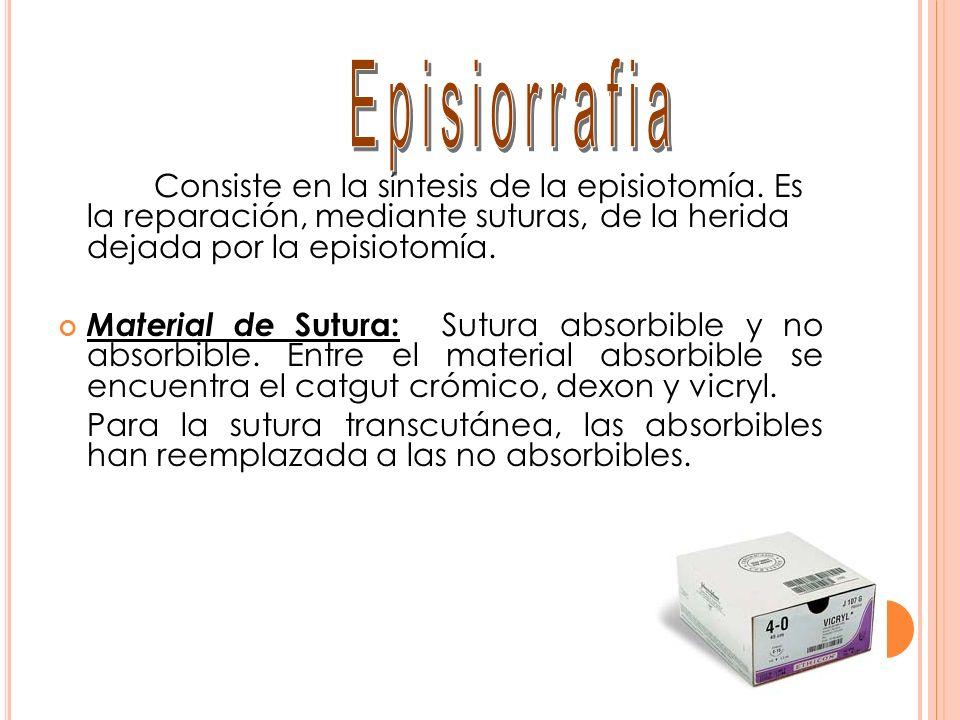 Consiste en la síntesis de la episiotomía. Es la reparación, mediante suturas, de la herida dejada por la episiotomía. Material de Sutura: Sutura abso