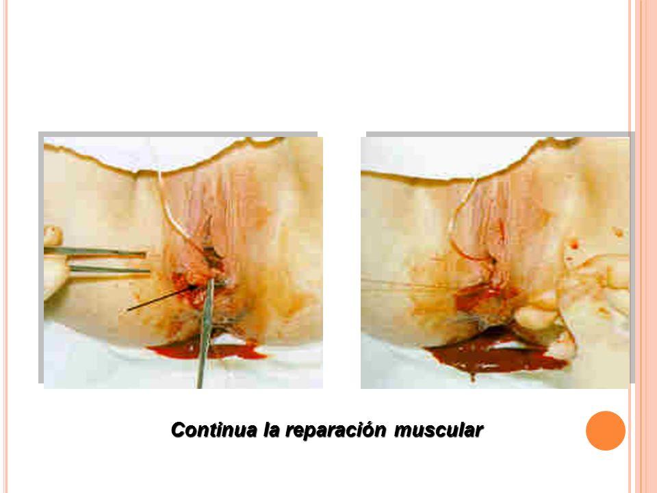Continua la reparación muscular