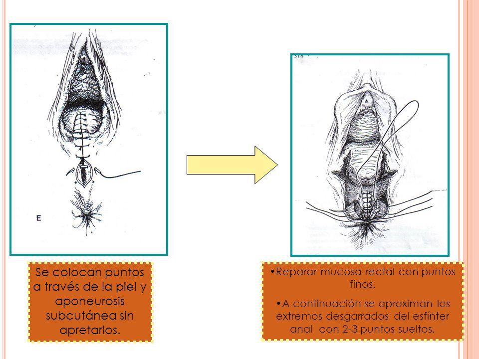 Se colocan puntos a través de la piel y aponeurosis subcutánea sin apretarlos. Reparar mucosa rectal con puntos finos. A continuación se aproximan los