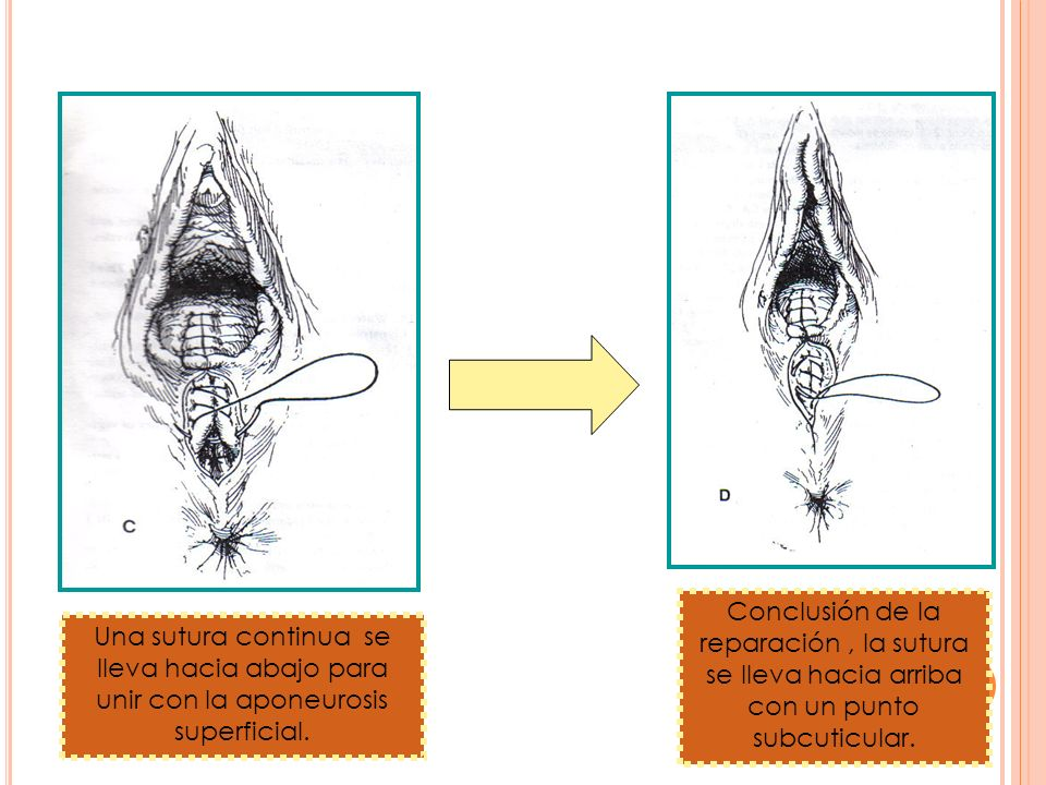 Una sutura continua se lleva hacia abajo para unir con la aponeurosis superficial. Conclusión de la reparación, la sutura se lleva hacia arriba con un