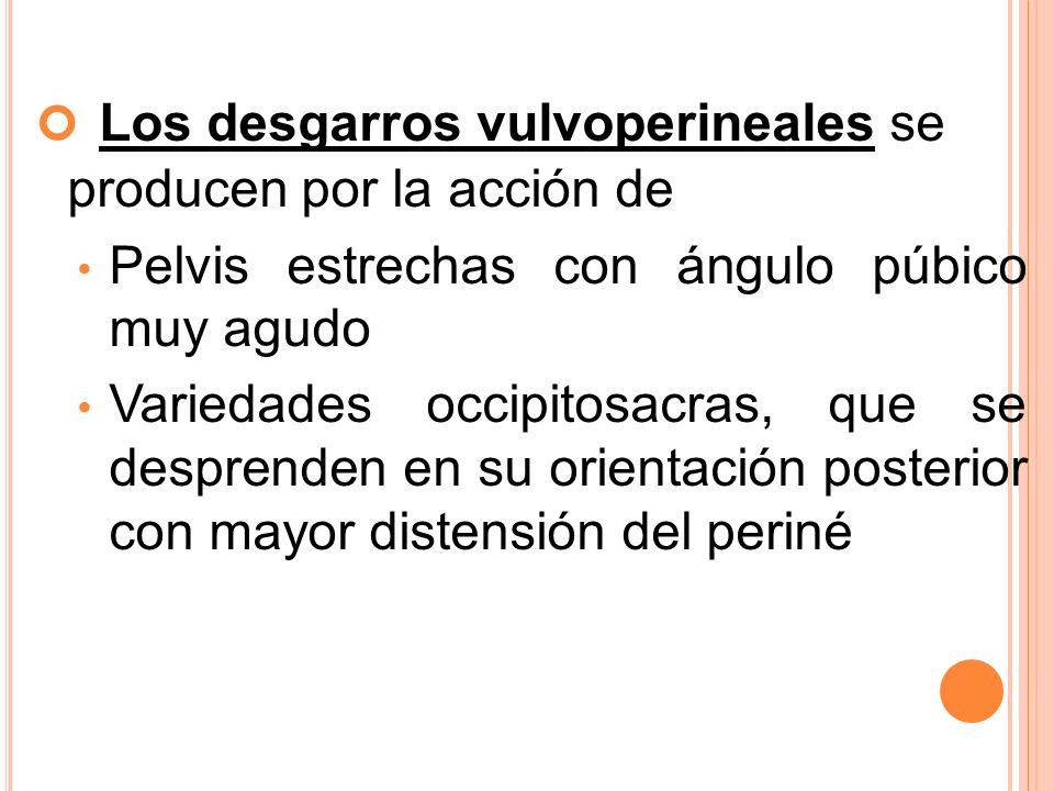 Los desgarros vulvoperineales se producen por la acción de Pelvis estrechas con ángulo púbico muy agudo Variedades occipitosacras, que se desprenden e
