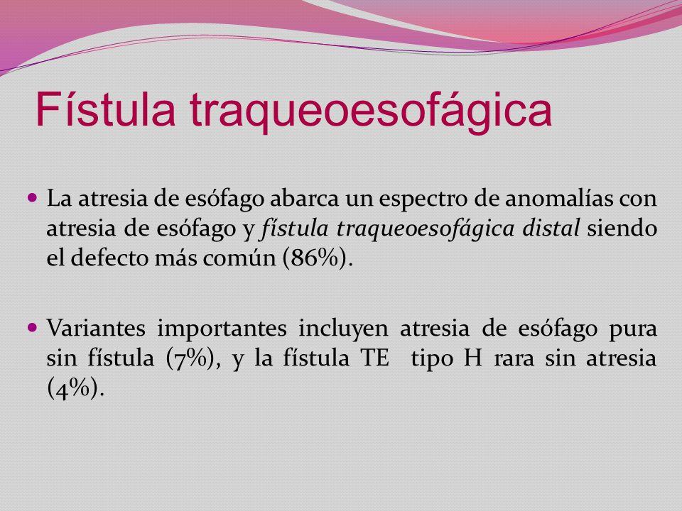 Fístula traqueoesofágica La atresia de esófago abarca un espectro de anomalías con atresia de esófago y fístula traqueoesofágica distal siendo el defe