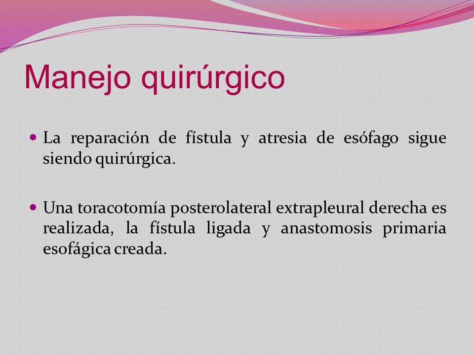 Manejo quirúrgico La reparación de fístula y atresia de esófago sigue siendo quirúrgica. Una toracotomía posterolateral extrapleural derecha es realiz