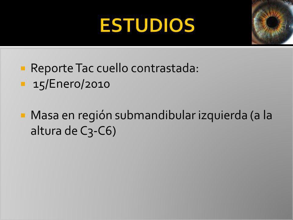 Reporte Tac cuello contrastada: 15/Enero/2010 Masa en región submandibular izquierda (a la altura de C3-C6)