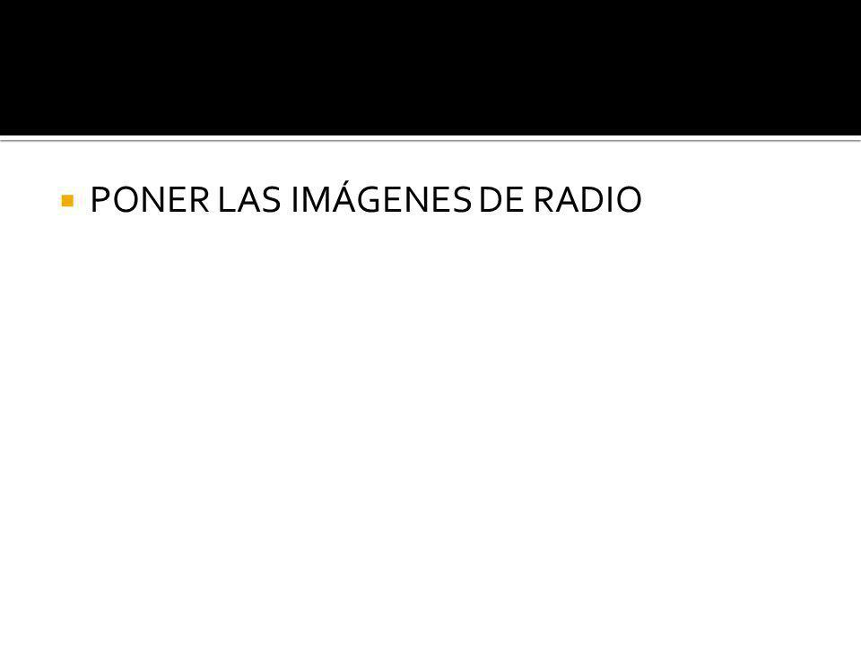 PONER LAS IMÁGENES DE RADIO