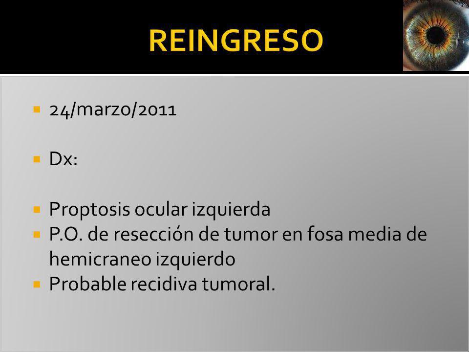 24/marzo/2011 Dx: Proptosis ocular izquierda P.O. de resección de tumor en fosa media de hemicraneo izquierdo Probable recidiva tumoral.