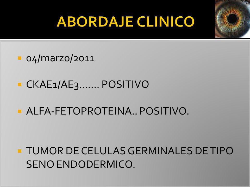 04/marzo/2011 CKAE1/AE3……. POSITIVO ALFA-FETOPROTEINA.. POSITIVO. TUMOR DE CELULAS GERMINALES DE TIPO SENO ENDODERMICO.