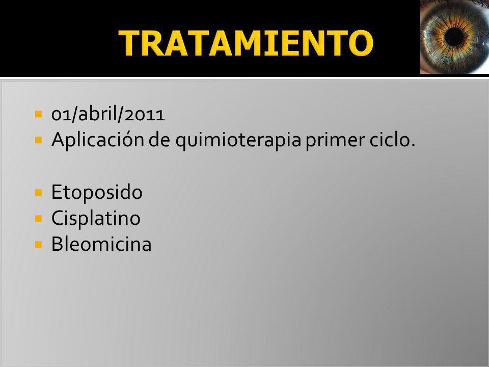 01/abril/2011 Aplicación de quimioterapia primer ciclo. Etoposido Cisplatino Bleomicina