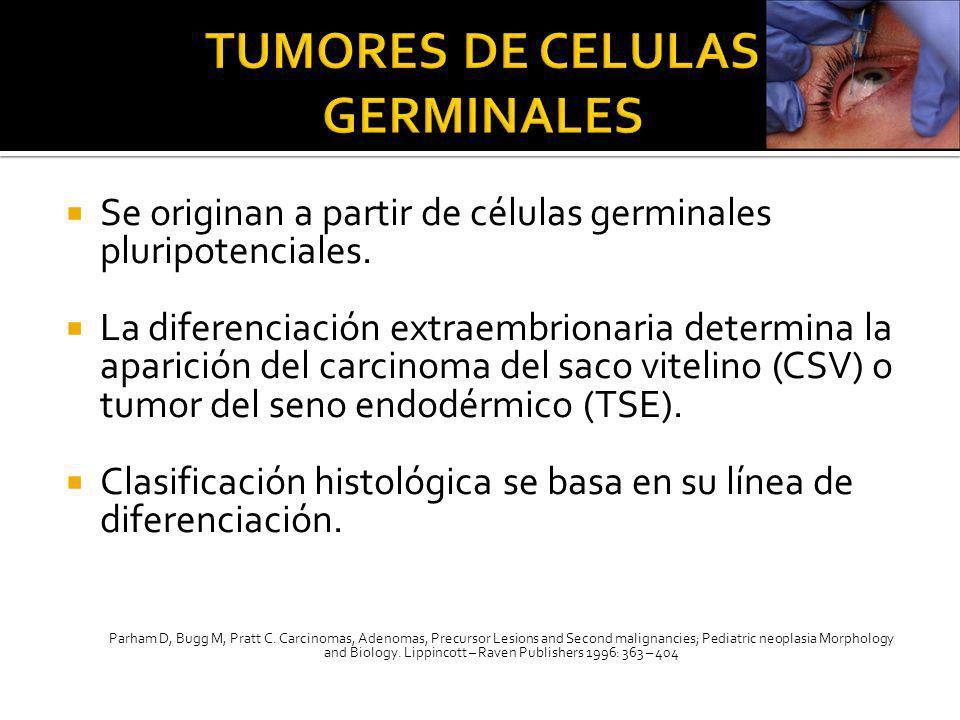 Se originan a partir de células germinales pluripotenciales. La diferenciación extraembrionaria determina la aparición del carcinoma del saco vitelino