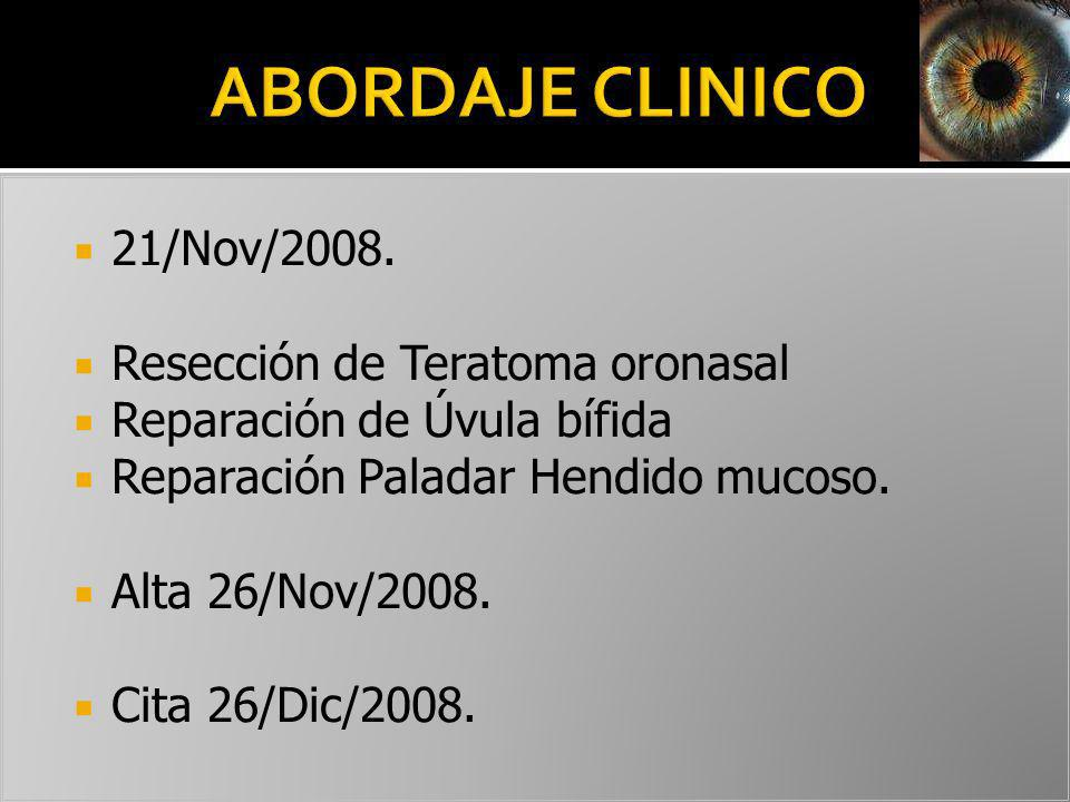 21/Nov/2008. Resección de Teratoma oronasal Reparación de Úvula bífida Reparación Paladar Hendido mucoso. Alta 26/Nov/2008. Cita 26/Dic/2008.