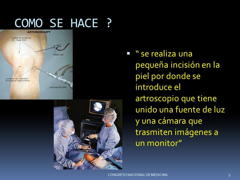 COMO SE HACE ? se realiza una pequeña incisión en la piel por donde se introduce el artroscopio que tiene unido una fuente de luz y una cámara que tra