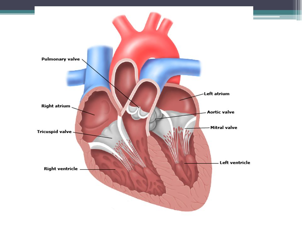 Etiología La insuficiencia mitral causada Anomalias estructurales del anillo mitral Las valvas de la válvula Las cuerdas tendinosas Músculos papilares