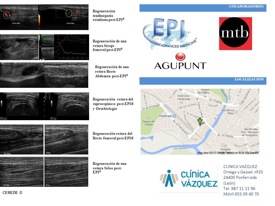 Regeneración tendinopatía rotuliana post-EPI ® Regeneración de una rotura biceps femoral post-EPI ® Regeneración de una rotura Recto Abdomen post-EPI