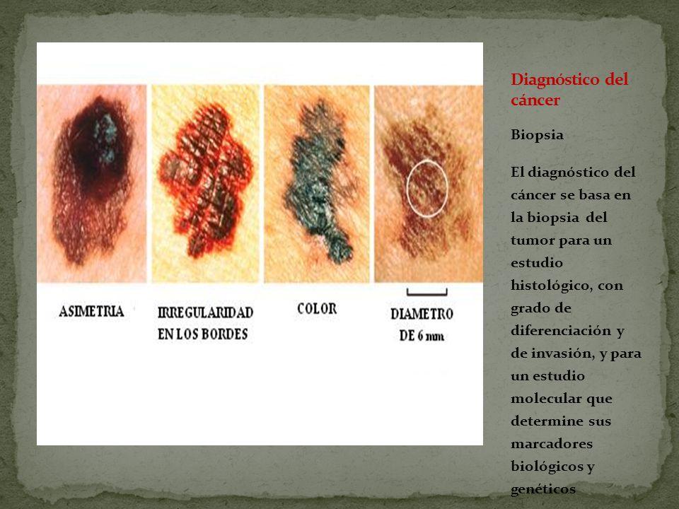Biopsia El diagnóstico del cáncer se basa en la biopsia del tumor para un estudio histológico, con grado de diferenciación y de invasión, y para un estudio molecular que determine sus marcadores biológicos y genéticos